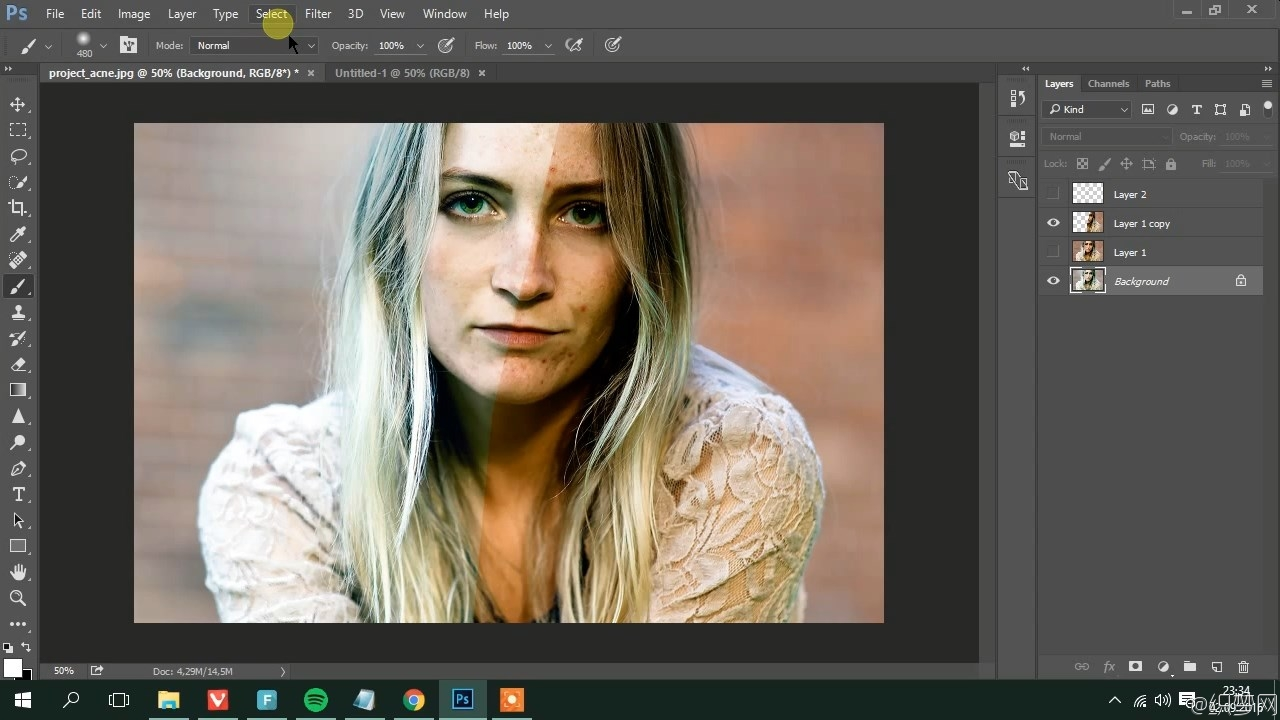 ʹ��PS��������򵥷�����Ƶ�̳� - Photoshop: Easiest Way To Remove Acne